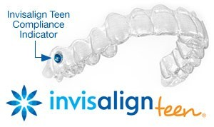Invisalign teen haverford | Faust Orthodontics Havertown Pa