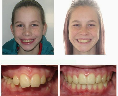 Traditional Braces | Faust Orthodontics