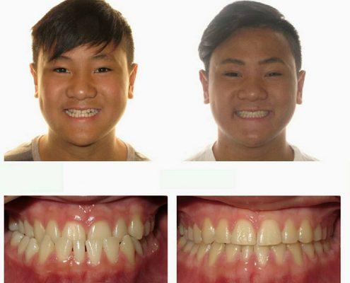 Traditional Braces | Faust Orthodontics