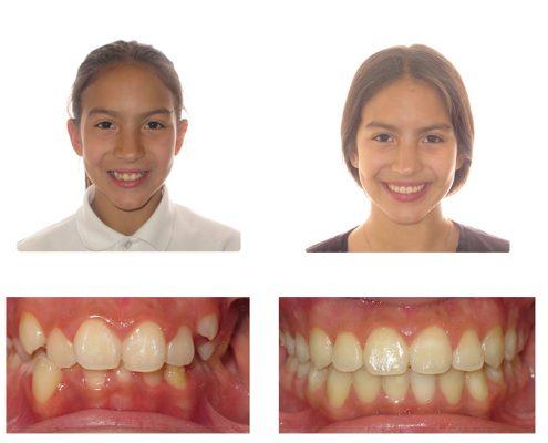 Invisalign | Faust Orthodontics