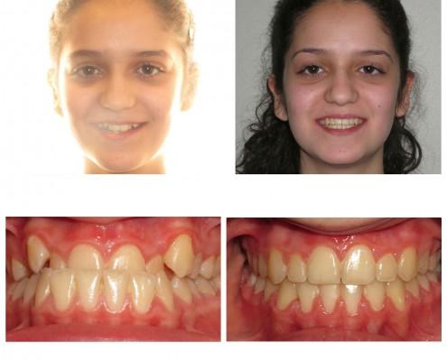 best orthodontist radnor | Faust Orthodontics Havertown Pa