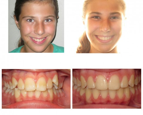 best orthodontist ardmore | Faust Orthodontics Havertown Pa