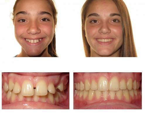 braces newtown square | Faust Orthodontics Havertown Pa