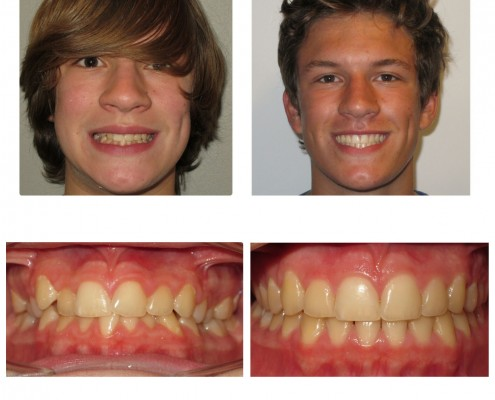 braces villanova | Faust Orthodontics Havertown Pa