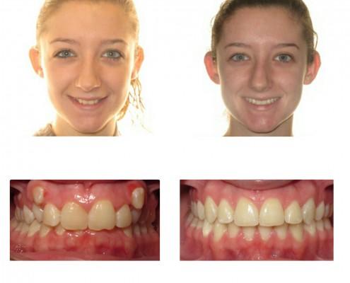 braces bryn mawr | Faust Orthodontics Havertown Pa