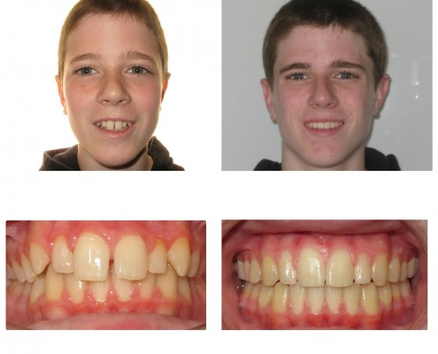 orthodontist before and after | Faust Orthodontics Havertown Pa