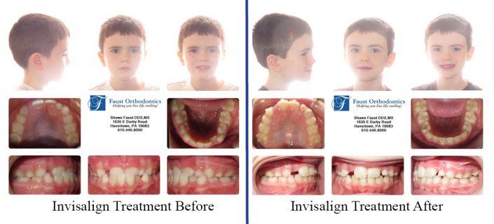 Invisalign Early Treatment | Faust Orthodontics