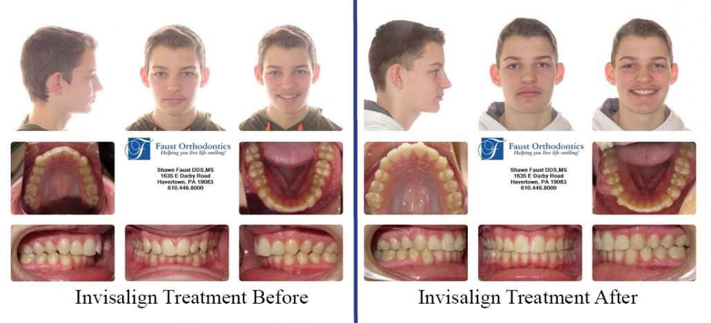 Invisalign Treatment For Teens   Faust Orthodontics
