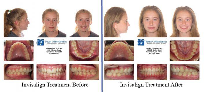 Invisalign Treatment For Teens | Faust Orthodontics