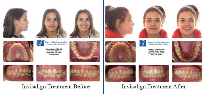 Invisalign Treatment | Faust Orthodontics