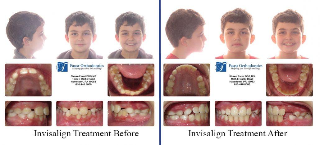 Invisalign Early Treatment | Faust Orthodontics