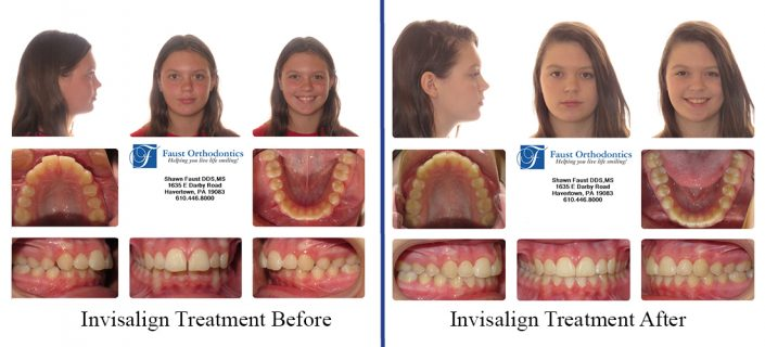 Invisalign for Teens | Faust Orthodontics